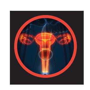 Fibroid Treatment
