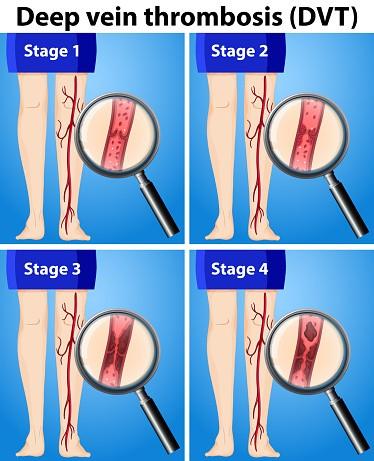 Deep vein thrombosis DVT stages diagram