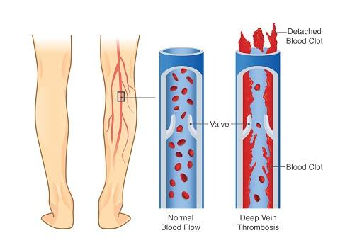 DVT illustration diagram