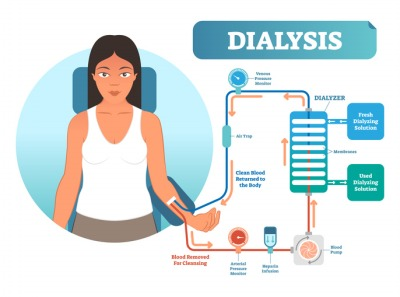 dialysis diagram illustration
